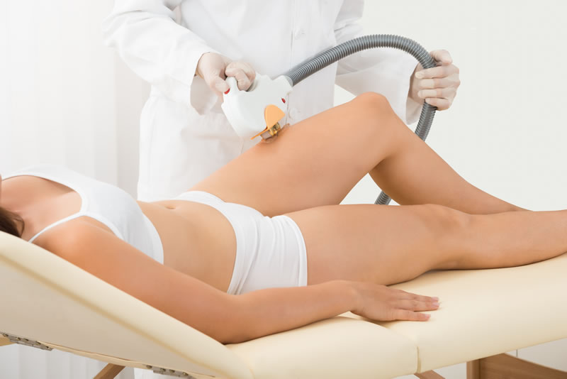 ipl_hair_removal